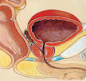 Mi jobb a prosztatagyulladás kezelésében - mavit vagy milta